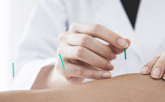 Acupuncture provided by your Chiropractor: Now offered by Dr. Curtis Turner DC